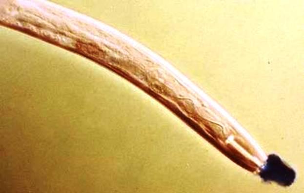 Дитиленхоз лука и чеснока