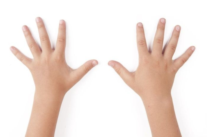 Кожа рук, склонная к покраснению